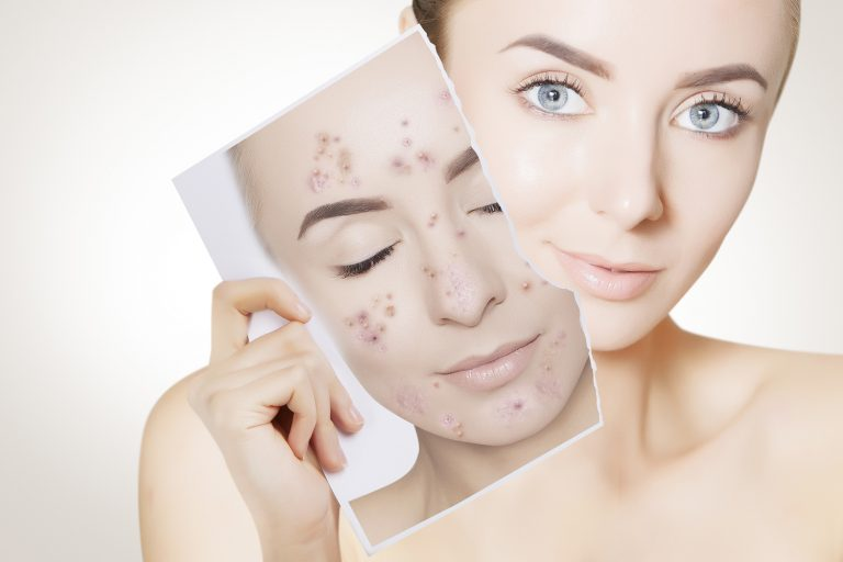 Acne Treatment Dermatology Services ForCare Medical Center Medical Practice Clinical Research Tampa, FL