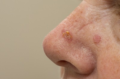 Actinic Keratosis Medical Conditions researched ForCare Medical Center Clinical Trials