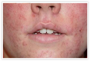 Acne Vulgaris Medical Conditions researched ForCare Medical Center Clinical Trials