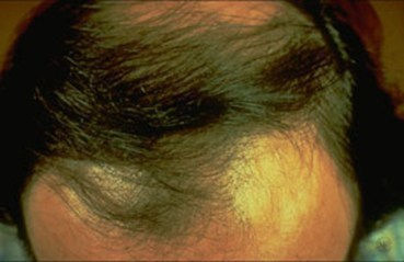 Hair Loss Medical Conditions researched ForCare Medical Center Clinical Trials