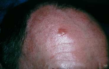 Skin Cancer Medical Conditions researched ForCare Medical Center Clinical Trials